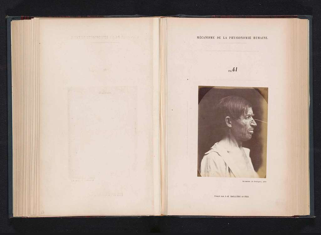 Portret van een proefpersoon tijdens elektrostimulatie: 'un homme âgé de quarante-deux'