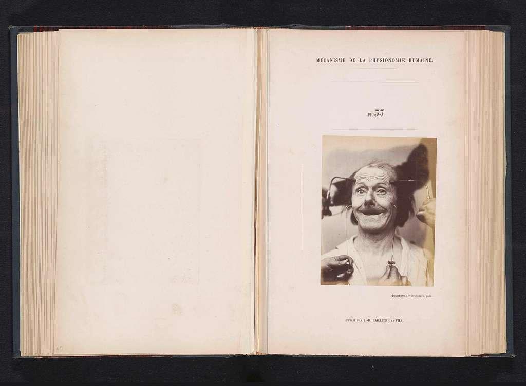 Portret van een proefpersoon tijdens elektrostimulatie: 'un vieillard'