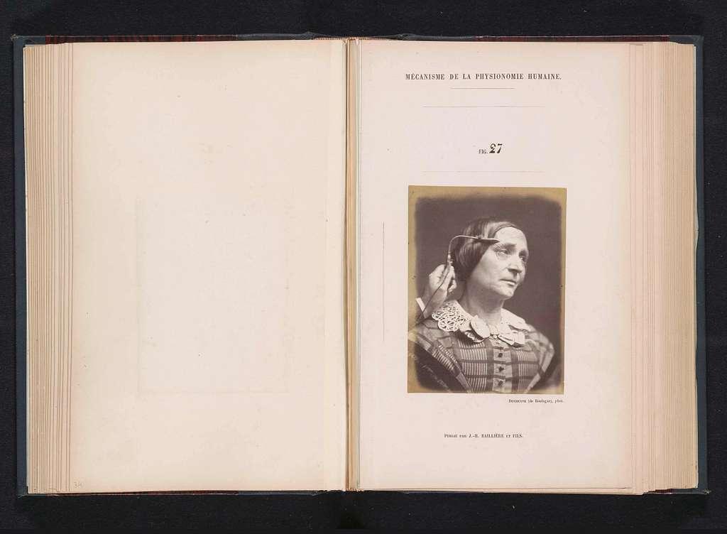 Portret van een proefpersoon tijdens elektrostimulatie: 'une femme âgée de cinquante-deux'