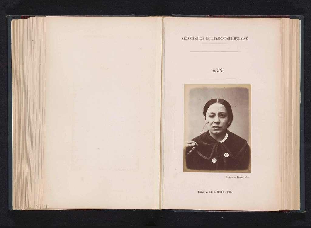 Portret van een proefpersoon tijdens elektrostimulatie: 'une jeune femme'