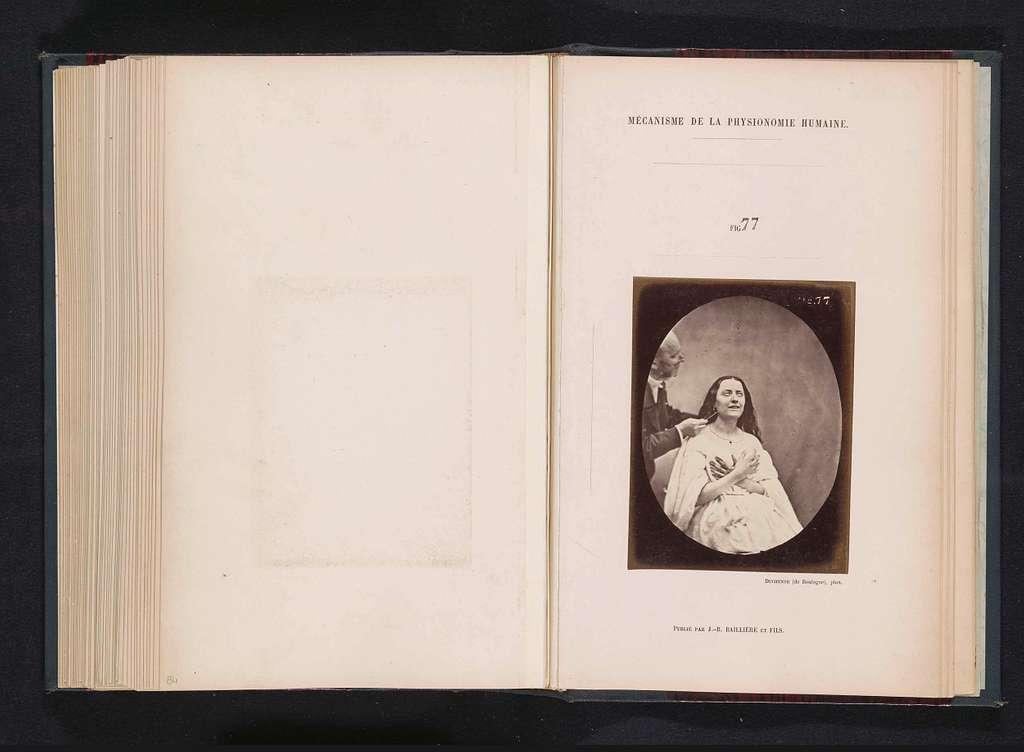 Portret van G.B.A. Duchenne en proefpersoon 'la jeune fille' tijdens elektrostimulatie
