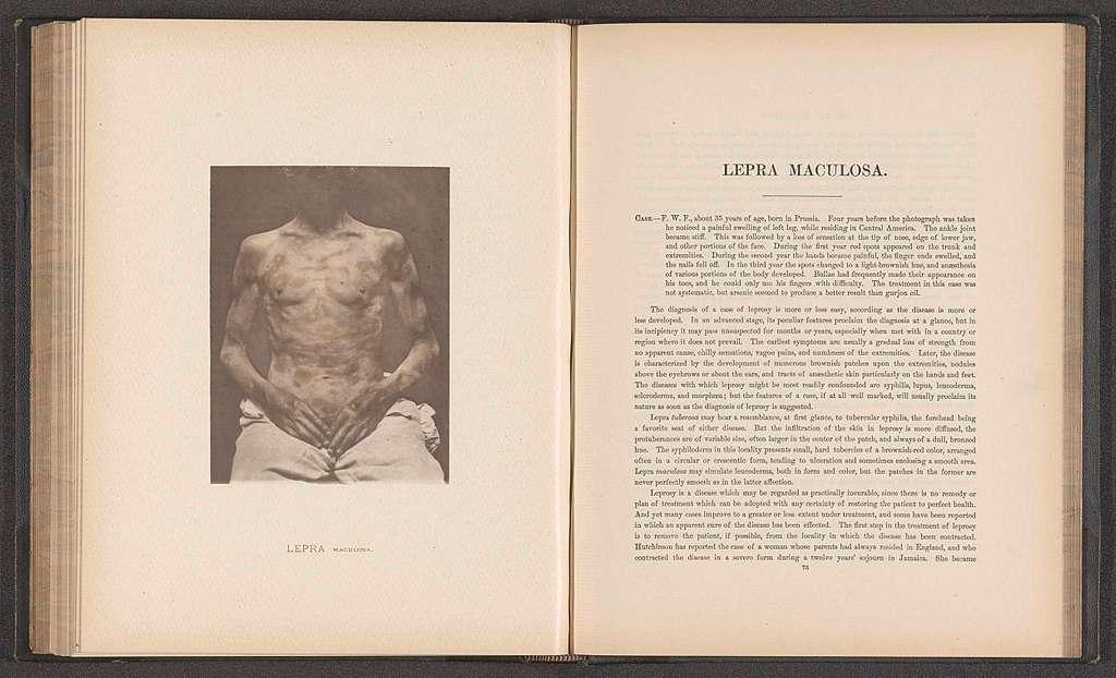 Patiënt lijdend aan de huidziekte 'lepra maculosa'