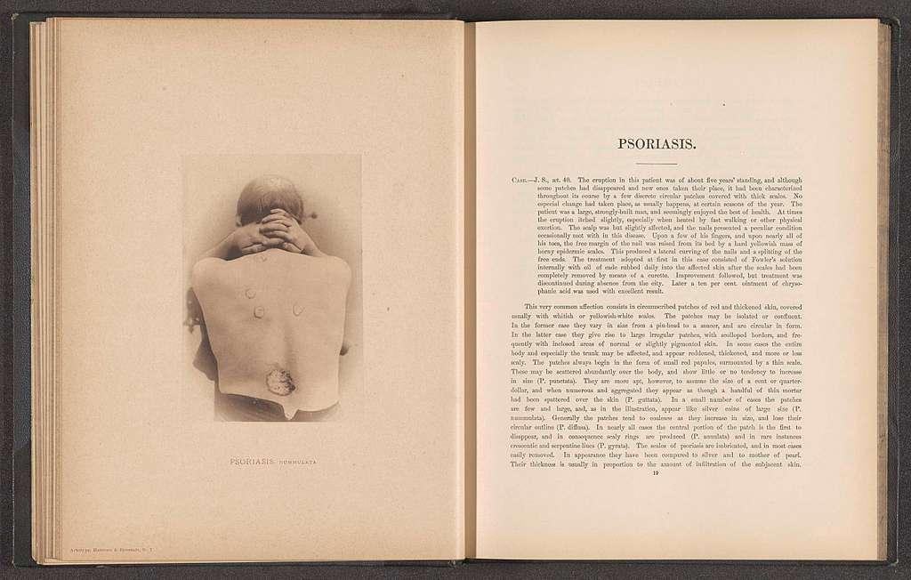 Patiënt lijdend aan de huidziekte 'psoriasis nummulata'