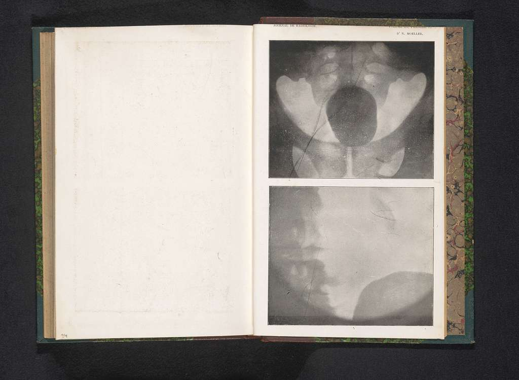 Röntgenfoto van een bekken